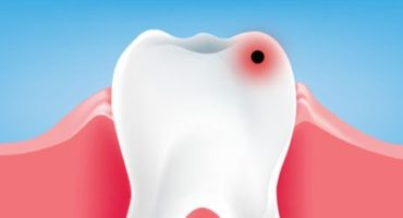 How to prevent dental caries Pearl32 Dental spa